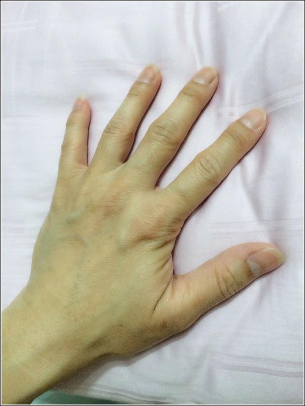 Darling's hand