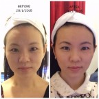 Before and After Ultheraphy picture submerryn