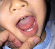 Ayden teeth at 22 month old